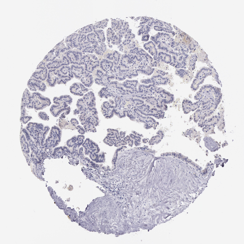 Molecular Determinants Of The Response Of Glioblastomas To | Autos Post