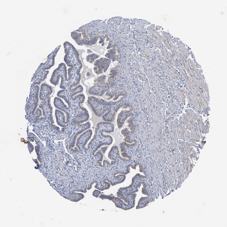Glandular Cells Not Detected Medium
