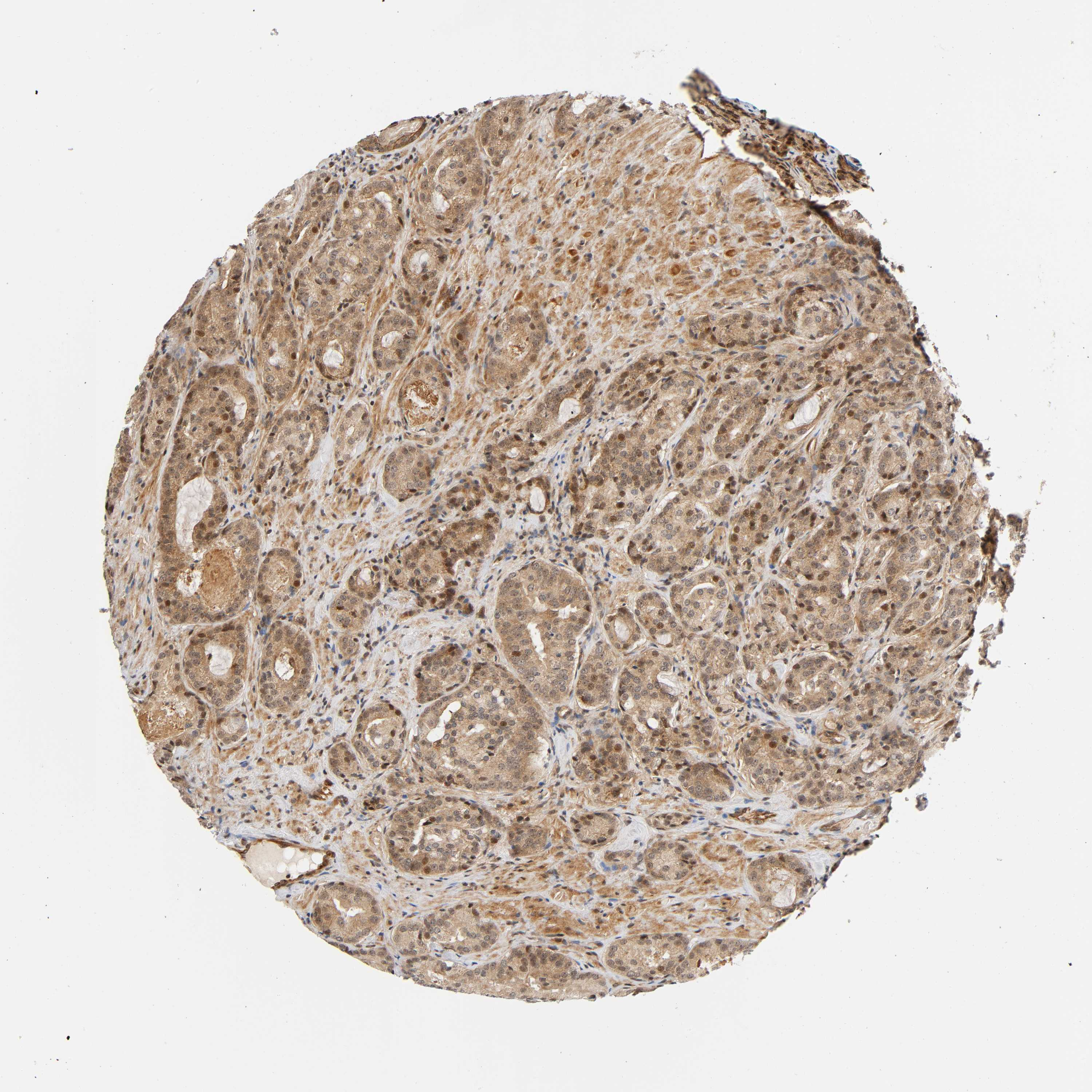 Expression Of Iqcj Schip1 In Prostate Cancer The Human Protein Atlas