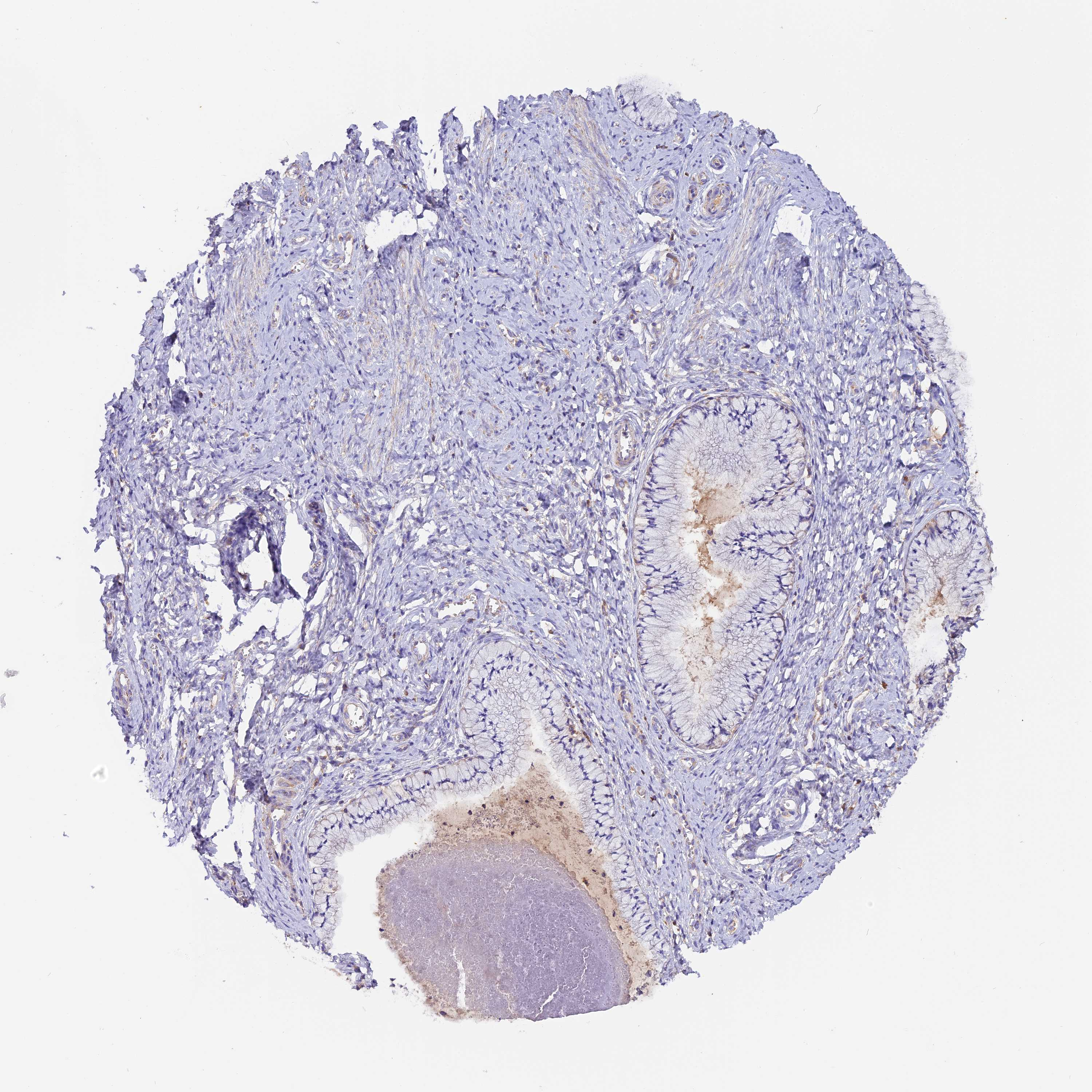 Tissue Expression Of Six5 Staining In Cervix Uterine The Human